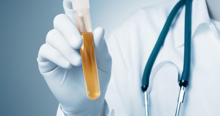 Arzt Hand eine Flasche Urinprobe halten