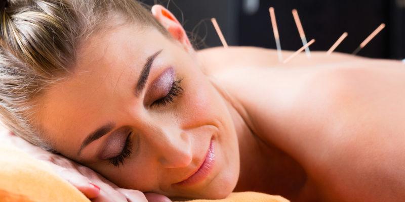 Frau bei der Akupunktur-Sitzung mit Nadeln auf der Rückseite mit alternativen Therapie